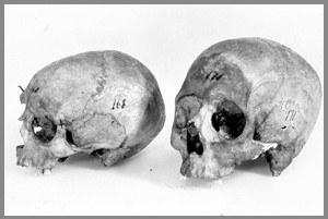 Kong Håkon Vs og dronning Eufemias hodeskaller